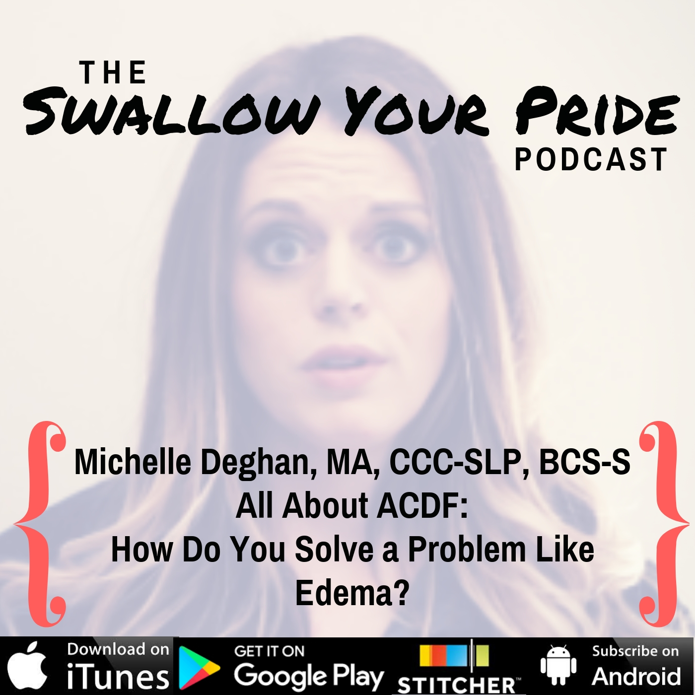 070 –  Michelle Deghan, MA, CCC-SLP, BCS-S – How do you solve a problem like edema? All things ACDF